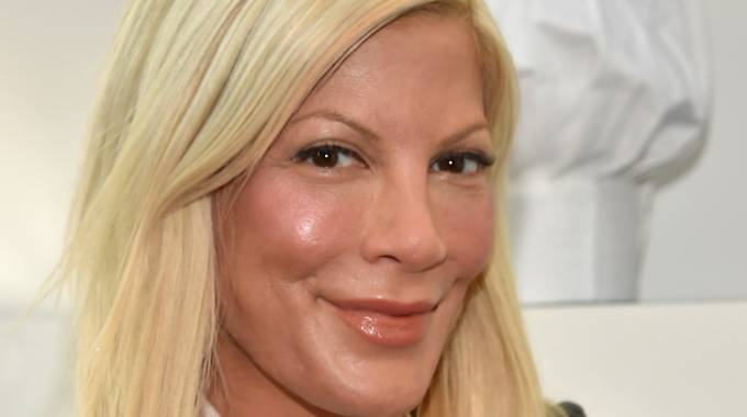 Il volto trasformato di Tori Spelling, la Donna Martin di Beverly Hills 90210